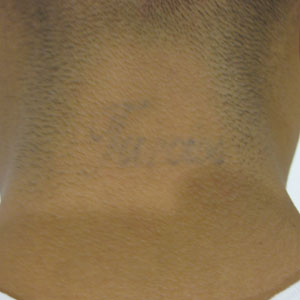 Tattoo After Image | InkBlasters Precision Laser Tattoo Removal in Detroit