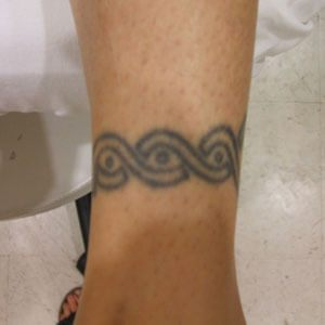 Tattoo Before Image | InkBlasters Precision Laser Tattoo Removal in Detroit