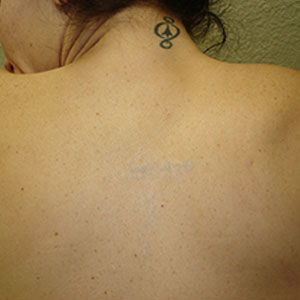 Image of Tattoo After Laser Tattoo Removal in Detroit | Ink Blasters Metro Detroit Tattoo Removal