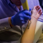 InkBlasters-Tattoo-Laser-Removal
